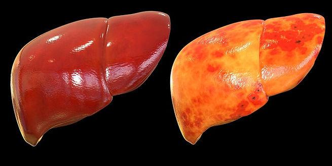 La enfermedad por hígado graso es una condición en la que se acumula grasa en el hígado.
