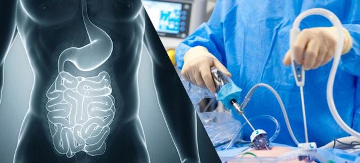 cirugia gastrointestinal.jpg