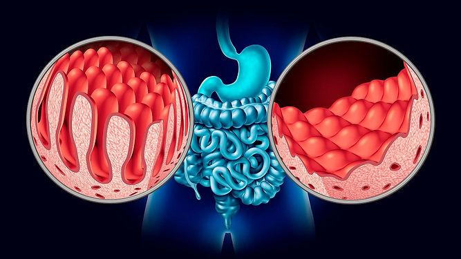Enlace-bacterias-en-enfermedad-celiaca.j