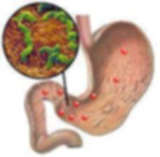 Cirugía Gastrointestinal, Laparoscopía, Doctor Luis Javier Cárdenas