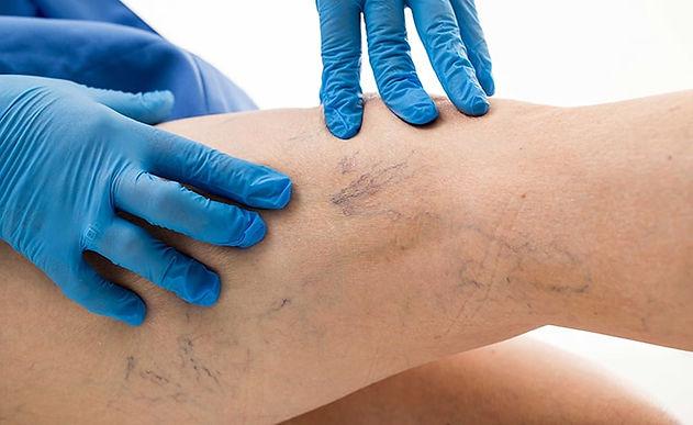 La flebología o Cirugía Vascular Periférica, MSN Salud Noticias