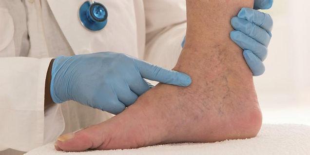 Venas Varicosas o Varices Por el Doctor Marcos Poler, MSN Salud Noticias