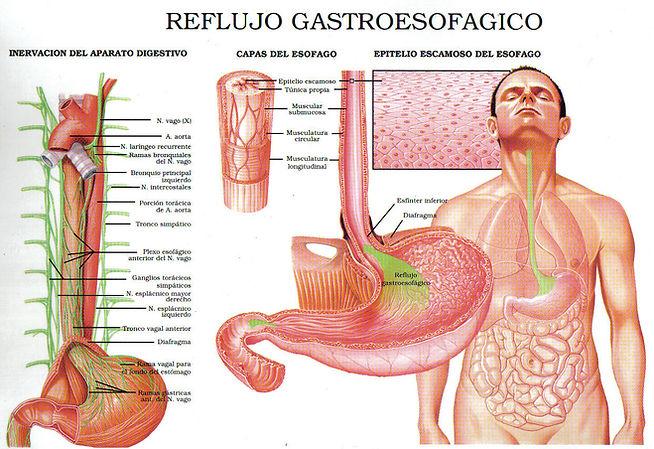 Reflujo Gastroesofágico, Doctor Luis Javier Cárdenas