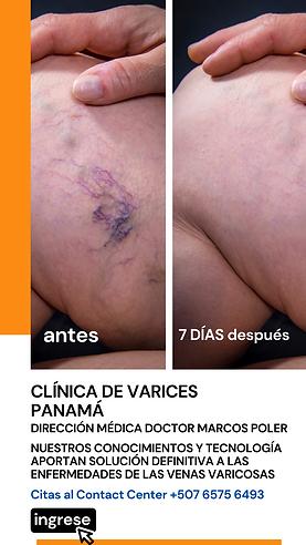 Clínica de Varices Panamá, MSN Salud Noticias
