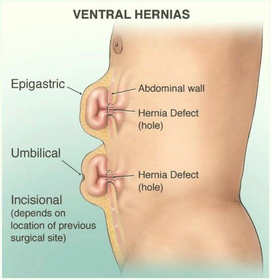 Hernia Ventral