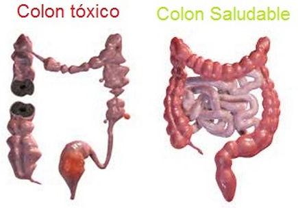 El cáncer de colon es el cáncer del intestino grueso (colon), que es la parte final del tubo digestivo.