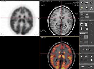 PET-IRM-cabeza-Keosys.jpg