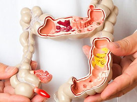 Coloproctología  | Descripción |Patologías | Doctor Aurelio Iván Nuñez