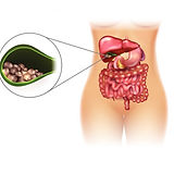 Colelitiasis, Cálculos Vesiculares en MSN Salud Noticias