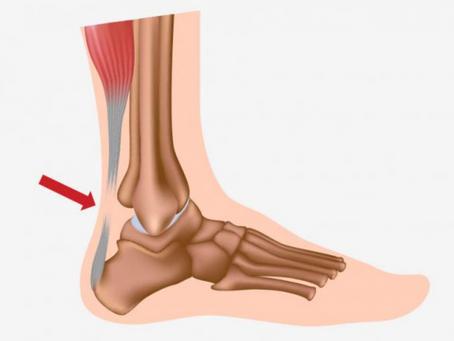 Tratamiento de la rotura del tendón de Aquiles