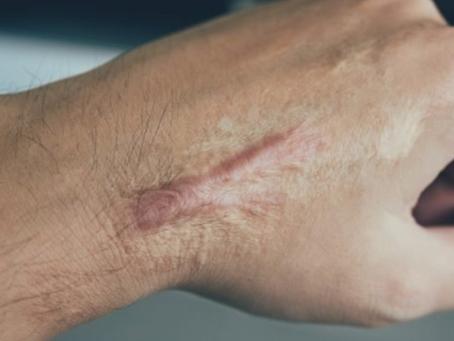 ¿Porque es importante tratar las cicatrices?