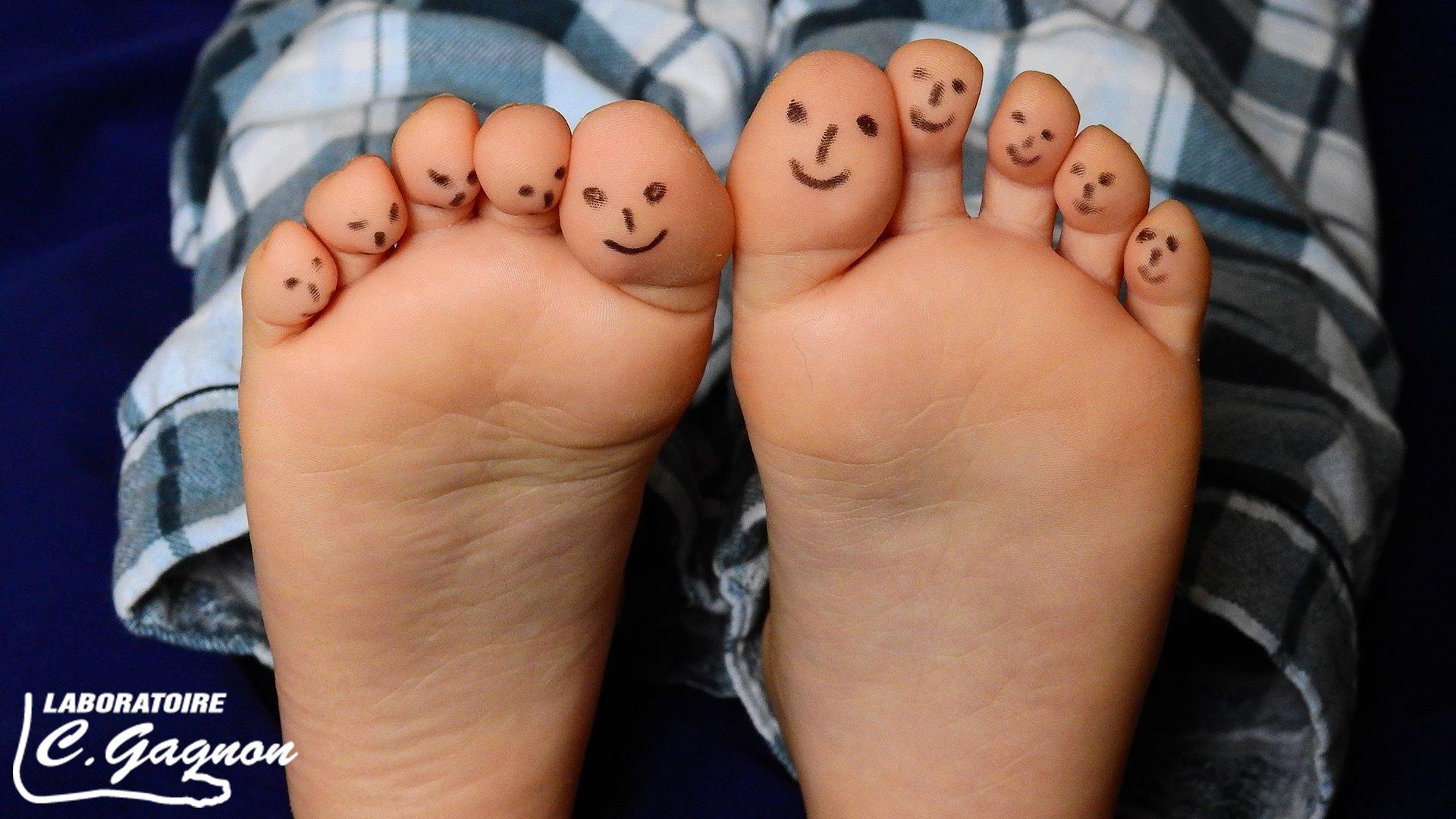 orthesiste du pied Le podo-orthésiste agréé et le podoorthésiste agréé chef de fabrication sont   consultez un orthésiste du pied certifié et évaluez la possibilité d'obtenir des.
