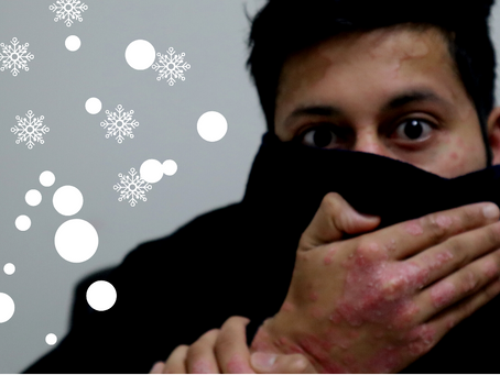 Psoriasis and the Cold Winter
