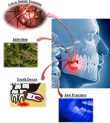 Wisdom tooth complications