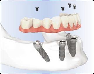 Diagram of dental implants in Prince Edward, ON