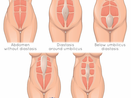 3 Steps to a Postpartum Diastasis Recti Self-Assessment