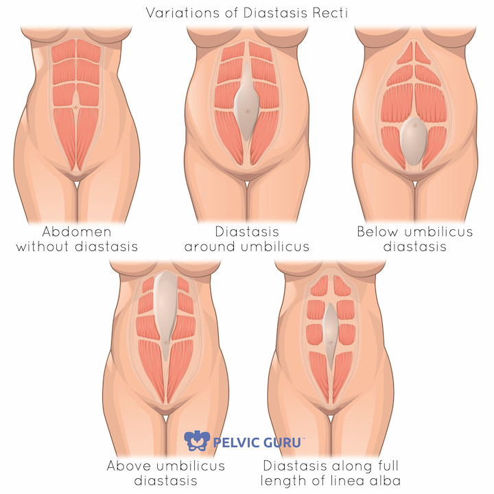 5 variations of diastasis recti are pictured. The first image shows an abdomen with no abdominal separation. The next images show, diastasis above the belly button, below the belly button, around the belly button and along the full length of the linea alba.