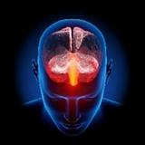 cerebro rac ser psiquico.png