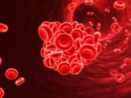 What is a DVT?