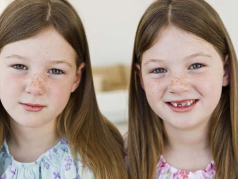 לסייע בקשיים חברתיים כשיש תאומים