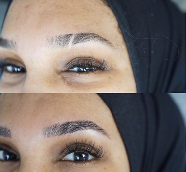 scar cover up with microblading