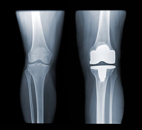 knee and knee with total replacement x-r