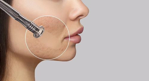 Woman with problem skin.The cosmetologist makes the procedure Microdermabrasion of the fac