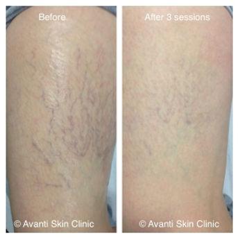 Leg-thread-vein-laser-treatment-300x300-