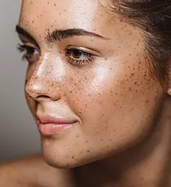 Young Woman with Freckles.webp
