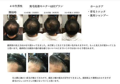 発毛促進ケア、発毛促進、エミューテ、美容室、美容院