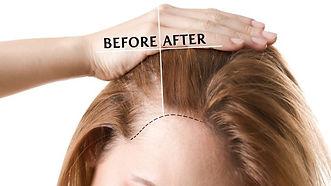 repousse cheveux.jpg