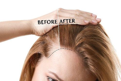 Formation repousse des cheveux par micro-needling - 5 novembre 2020