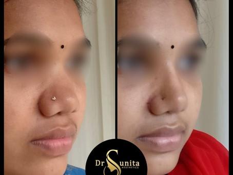 Sleek look of her nose through Rhinoplasty
