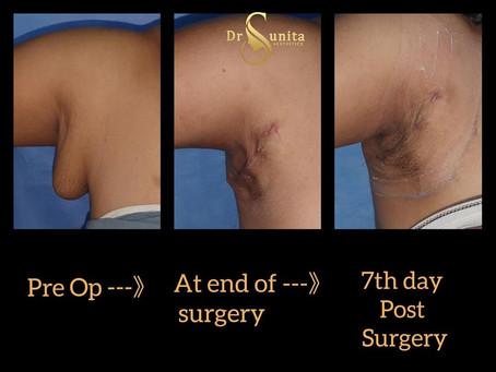 Axillary breasts Treatment in Vizag