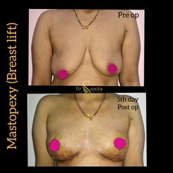 Breast lift/mastopexy