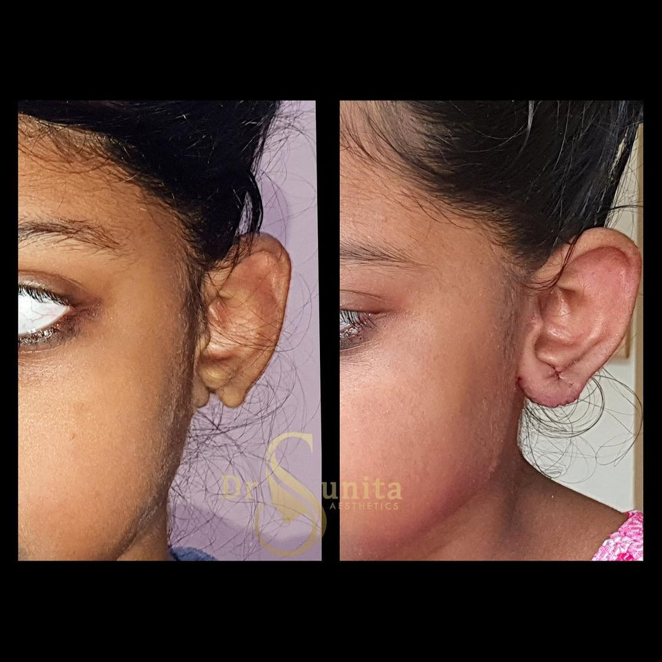 Dr.Sunita  Plastic Surgery in Vizag