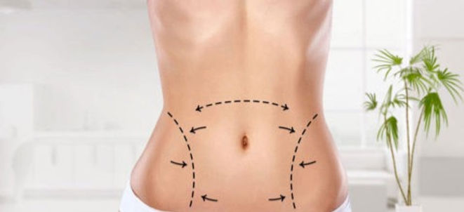 liposuction-turkey-480x330_edited.jpg