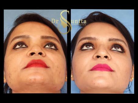 Non Surgical Transformation