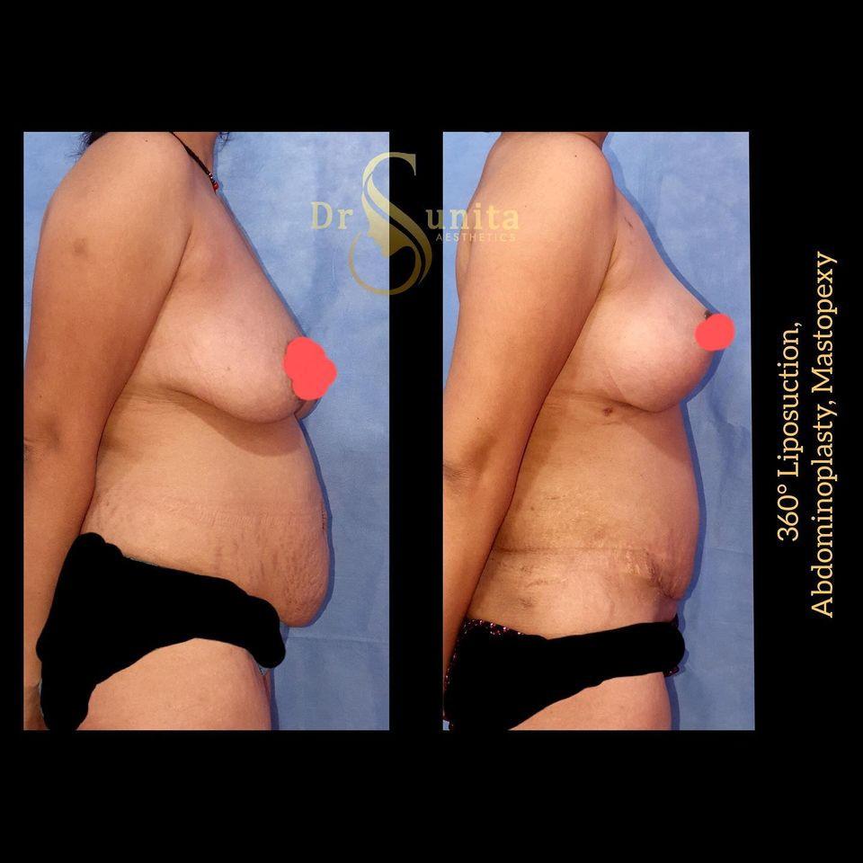 Dr.Sunita  Plastic Surgery in Vizag