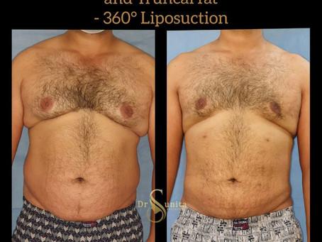 Gynecomastia and Circumferential Truncal Fat
