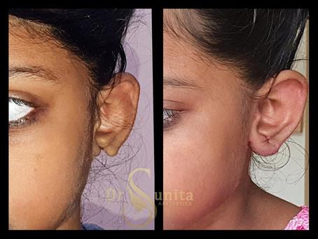 congenital lobule defect of left ear