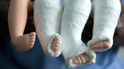 clubfoot-casting-ponseti-method-for-club