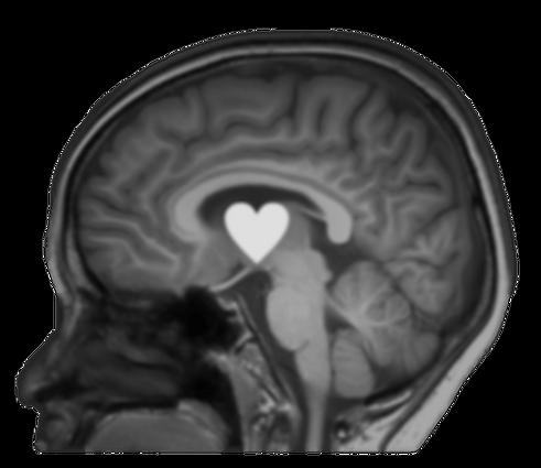 MRI_SH_540964111-1280x1233e.png