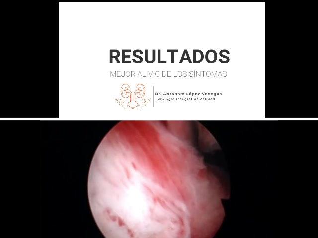 Cirugía endoscópica