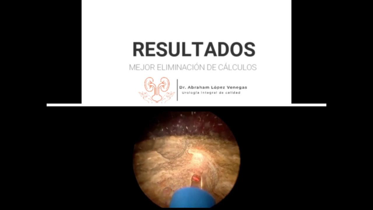 Cirugía láser