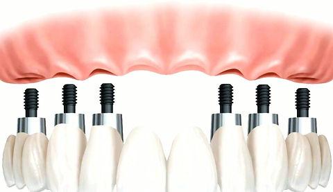 Implantologia - Clínica Fernandez Bisbal