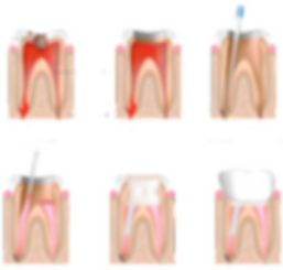 endodoncia_clinica_fernandez_bisbal.png