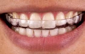 Bruxism Tray / Mouth Guard
