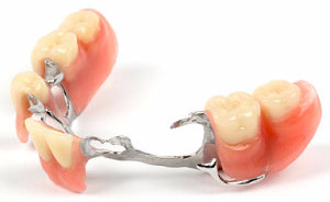 Pros & Cons of Dental Treatment Options