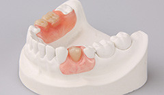 Do you feel your denture is too bulky and uncomfortable when you only need a small number of teeth t